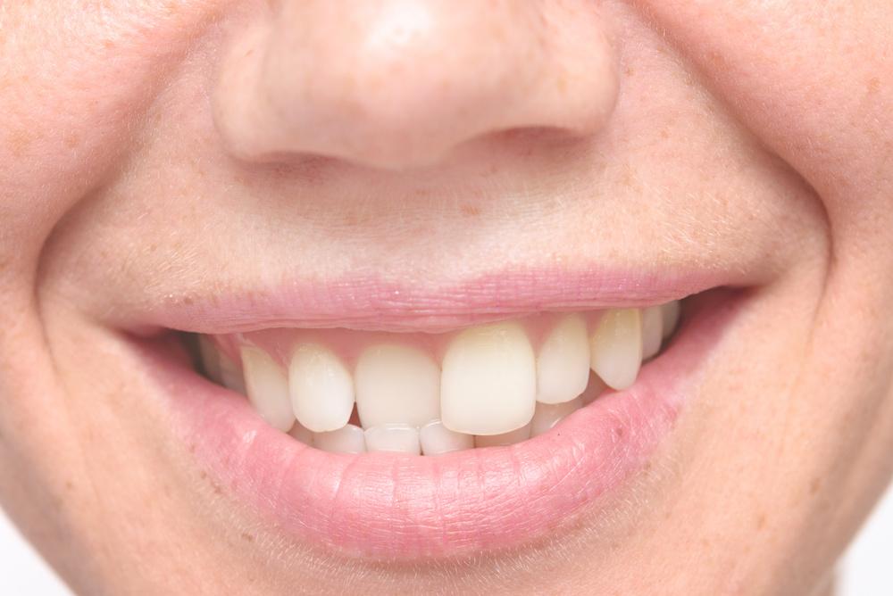 effets-malocclusion-dentaire-sur-troubles-respiratoire