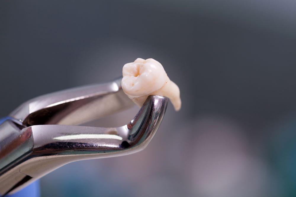 pourquoi-enlever-dents-de-sagesse