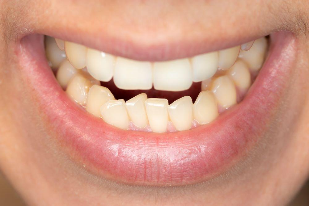 conséquences malocclusion dentaire