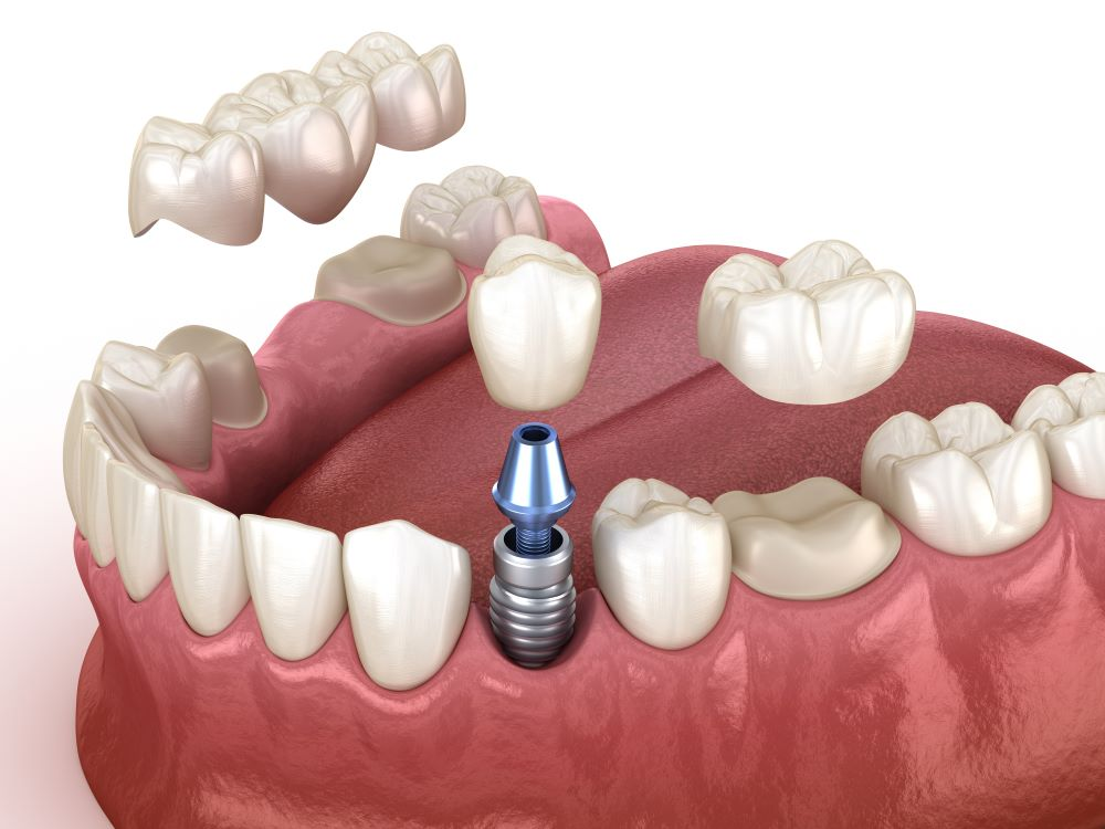 différence implant couronne dentaire