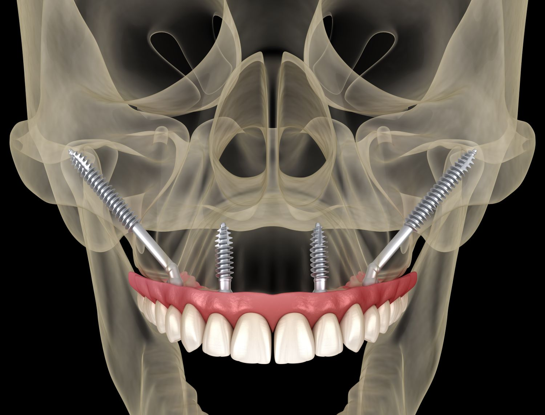 en quoi consistent les implants zygomatiques