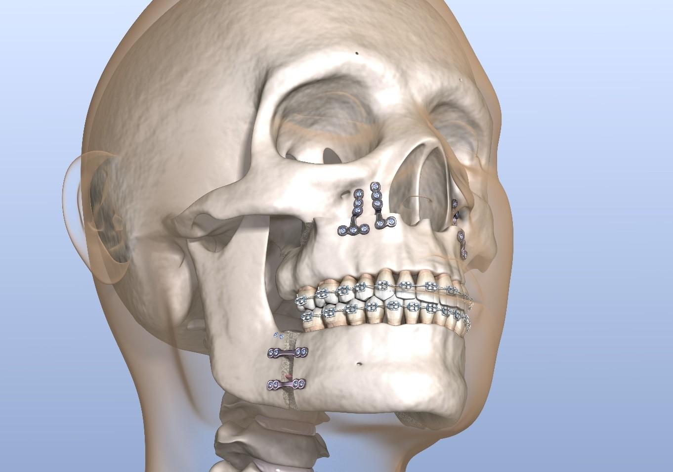 en quoi consistes l'ostéotomie bi maxillaire