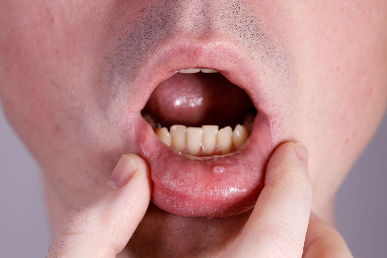 pathologies buccales les plus communes