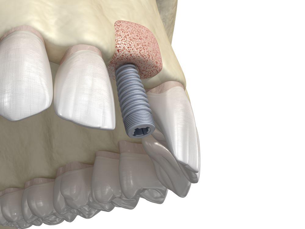 tout savoir greffe osseuse avant implant dentire