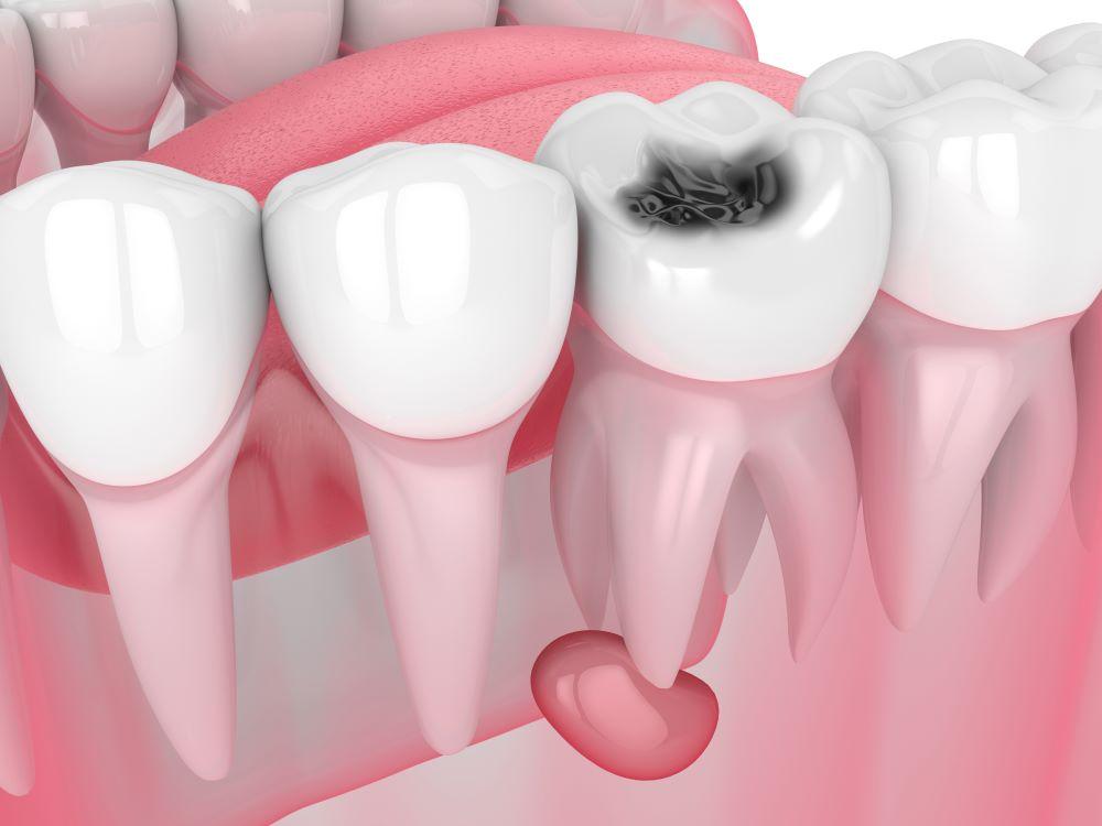 tout savoir kystes dentaires